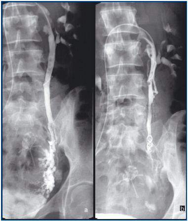 Medicament din ceea ce pe ultrasunete a arătat varice esofagiene și cum să se trateze