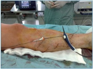 A retrospective study of 100 patients with varicose veins treated ...