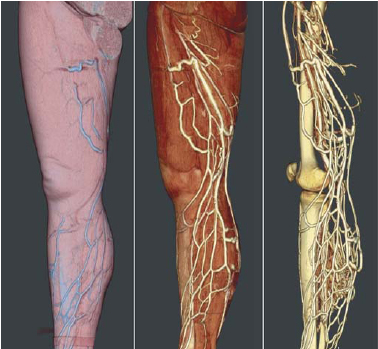 New computer tools for virtual dissection to study the anatomy of ...