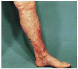 scapă de vene varicoase chirurgicale scuturați picioarele cu varicoză