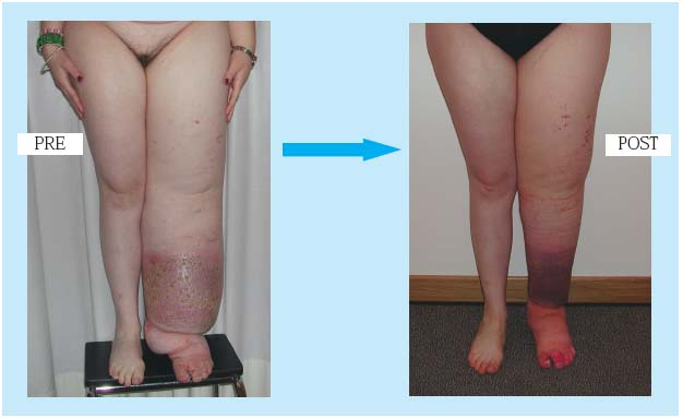 Current Use Of Microsurgery In Lymphedema Servier Phlebolymphologyservier Phlebolymphology
