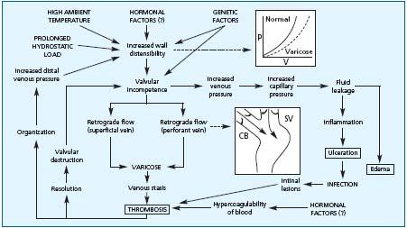 pathophysiology of varicose veins