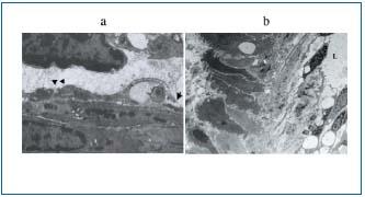 Figure 1 (a, b)
