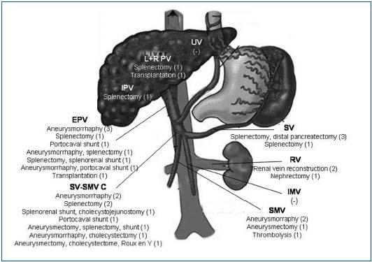 Splenic artery aneurysm associated with anatomic variations in origin