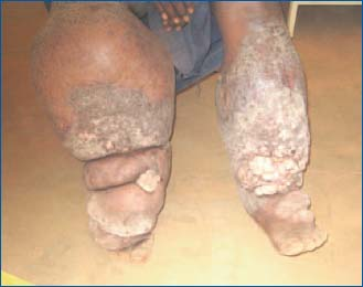 Discovery Of Lymphatic Filariasis During A Humanitarian
