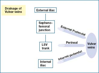 Treatment of vulvar and perineal varicose veins - Servier