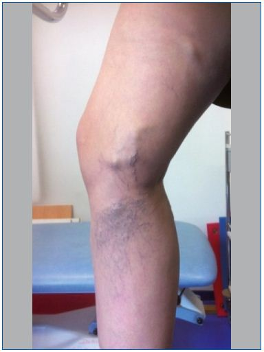 Figure 1. Large varicose vein parallel to the path of the greater saphenous vein and telangiectasia; appeared in the fourth month of pregnancy. Note the likely perforating vein. (C1 and C2 of the CEAP classification) (Photo ACT).