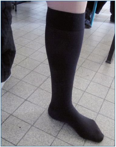 Figure 5. Two layered medical compression stockings. The fabric of the two stockings is identical so that the outer stocking slips easily over the under stocking. In this photo, two knee-high stockings are worn one on top of the other.