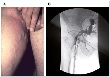 Figure1. PREVAIT clinical aspect. A. Pelvic vein leak. B. Selective pelvic venography from the same patient as A. (Courtesy of Drs Monedero and Zubicoa).