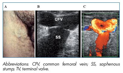 Figure 3. PREVAIT clinical aspect. A. Massive groin recurrence related to non flush high ligation in a patient with an incompetent GSV terminal valve. B. Same patient with a B mode ultrasound. The terminal valve is identified at the saphenofemoral junction. (Courtesy of Dr Gillet). C. Same patient with a color duplex ultrasound. Massive reflux induced by a Valsalva maneuver. (Courtesy of Dr Gillet).
