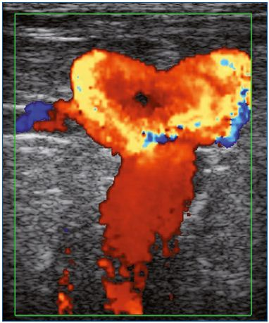 Figure 1. Presence of varices at the groin in a patient previously treated by saphenofemoral ligation. Color duplex ultrasound. Massive reflux induced by a Valsalva maneuver. Image courtesy of Dr Gillet.
