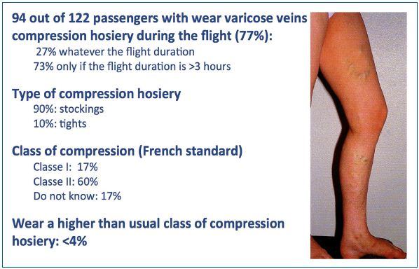 Figure 3. Knowledge of passengers with varicose veins of the benefits of medical compression. Report from 122 passengers with varicose veins.