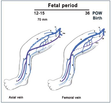 Figure 8. Summary of the fetal period of development (after week 8). The primitive veins are colored in purple. Notice that the fetus (weeks 9 to 15) commonly has a big axial vein while the femoral vein is smaller and plexus shaped. Later, the axial vein becomes a small arcade along the sciatic nerve, and the femoral vein becomes the main trunk of the thigh in the majority of cases at birth, commonly with a collateral canal. Abbreviations: 3, fibular veins; 4, arch of the SSV; 5, great saphenous vein; 7, anterior tibial veins; 8, SSV; 9, posterior tibial; 10, femoral vein; 11, axial vein; 12, epigastric vein; 13, thigh extension of SSV; 14, deep femoral vein; 15, obturator vein; 16, hypogastric vein; 17, external iliac vein; 18, inferior gluteal vein; cc, collateral canal; P, perforating branches of the femoral vein; POW, postovulatory week; sna, axial arcade along the sciatic nerve; SSV, small saphenous vein.