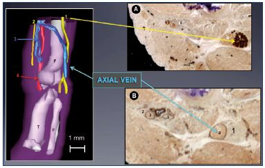 Figure 9. Immune markers for nerves and vessels in a 13-weekold fetus. Panel A. A 3D reconstructed limb showing a big axial vein along the sciatic nerve, while the femoral vein is reduced to a small plexus-shaped network located inside the femoral canal with its companions the femoral artery and femoral nerve. Slices of a 13-week-old fetus stained for nerve-specific immune markers (slice A with protein S-100; Panel B) and vessel-specific immune markers (slice B with D2-40; Panel C) using the CAAD technique. Abbreviations: 1, sciatic nerve; 2, femoral nerve; 3, femoral vein; 4, femoral artery; a, axial vein; CADD, computer-assisted anatomical dissection; f, fibula; F, femur; T, tibia.