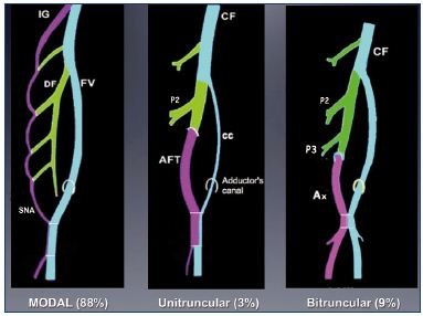 """Figure 12. Anatomical variations of the femoral vein occur in 12% of adults. If the primitive """"axial vein"""" of the embryo persists, either an axiofemoral trunk (unitruncular layout, 3%) or an axiofemoral vein (bitruncular layout, 9%) can be found in adults. In the modal layout (88%), the primitive axial vein becomes hypotrophic and, reduced to a small arcade. Abbreviations: AF, axiofemoral vein; AFT, axiofemoral trunk; cc, collateral canal; CF, common femoral vein; DV, deep femoral vein; FV, femoral vein; IG, inferior gluteal vein; P2, second perforator vein; P3, third perforator vein; SNA, sciatic nerve arcade."""