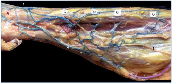 Figure 13. Remnant of marginal vein and fibular perforators in an adult. Anatomical dissection after latex injection in the left leg (lateral view after resection of the fibula bone). Notice the alignment of the fibular perforator veins connecting the thin marginal network to the fibular veins at specified locations (10, 14, 17, and 22 cm from the apex of the lateral malleolus). Abbreviations: 1, dorsal foot network connected to the anterior tibial perforators; 2, lateral marginal network connected to the fibular veins; 3, calcaneus perforator vein; 4, Achilean vein joining the small saphenous vein.