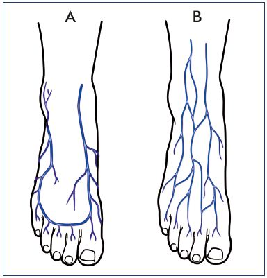 The venous system of the foot: anatomy, physiology, and clinical ...