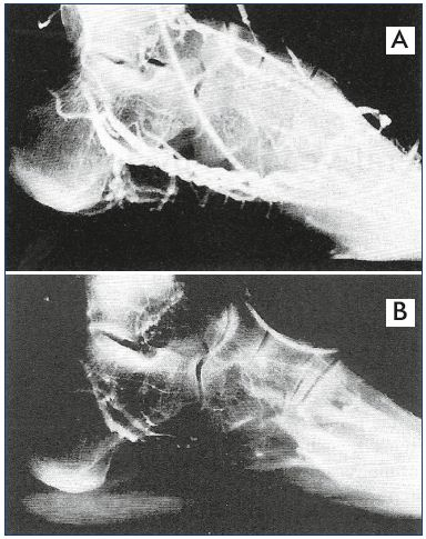Figure 6. Phlebogram of the lateral plantar veins with a dilated middle portion that acts like a reservoir. Panel A. Nonweight bearing. Panel B. Weight bearing, which empties the venous foot pump into the calf. From reference 14: Gardner and Fox. IOS Press. 2001. © 2001.