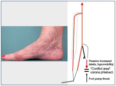 Figure 10. Corona phlebectatica paraplantaris in the absence of venous insufficiency.