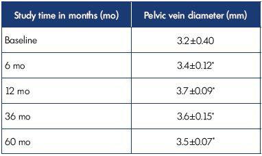 Table III. Results of tranvaginal USAS in 57 patients with pelvic dilation in isolated P V V using the diameter of the pelvic vein. *P=NS compared with baseline. Abbreviations: P V V, pelvic varicose veins; USAS, ultrasound angioscan.