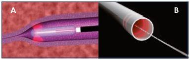 Figure 3. Fiber with radial emission. Fiber with single radial emission (Panel A) and double radial emission (Panel B).