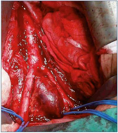 Figure 3. Iliac vein compression seen from the outside. From reference 25: Bækgaard et al. Phlebology. 2014;29(suppl 1):118-118. © 2014, SAGE Publications.
