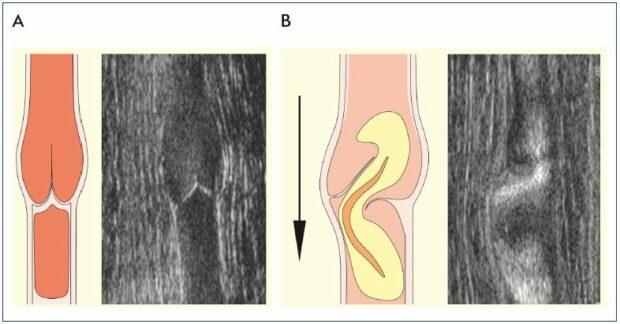 Daflon and the protection of venous valves - Servier