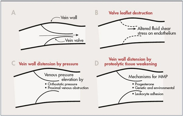 Figure 2. A schematic diagram illustrating selected mechanisms that may control inflammation of the vein wall and valve leaflet. A normal vein valve and wall is shown in Panel A. Valve leaflets may be subject to inflammatory damage by alteration in magnitude and direction of fluid shear stress on the endothelium (Panal B). Venous valves may become unable to close their leaflets due to vein wall distension by elevated venous pressure (Panel C), or by weakening of the vein wall due to proteolytic degradation of its extracellular matrix (Panel D). Abbreviation: MMP, matrix metalloproteinases From reference 11: Schmid-Schönbein. Medicographia. 2008;30:121-126. Image courtesy of the author.