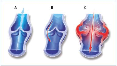 Figure 5. Illustrations of venous valves with and without reflux. Illustrations of a normal venous valve without reflux (Panel A), a valve with a nonpathological commissural reflux usually seen in the evening after being in a prolonged upright position (Panel B), and a valve with a pathological intervalvular reflux (Panel C). From reference 24: Tsoukanov Y et al. Phlebolymphology. 2015;22:18-24. Image courtesy of the author.