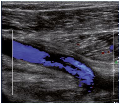 Figure 9. Color Doppler ultrasound of the popliteal vein (longitudinal view). There is a partial recanalization with irregular colorization of the lumen vein.