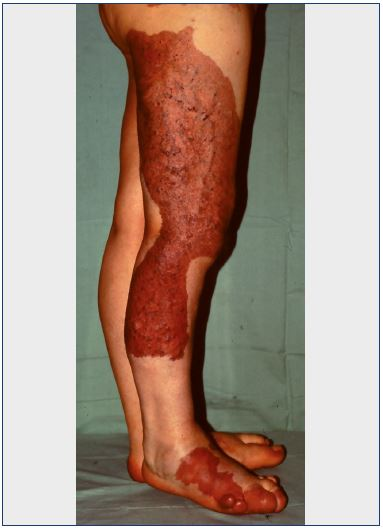Figure 1. Diffuse cutaneous nevus in a case of Klippel-Trenaunay syndrome.