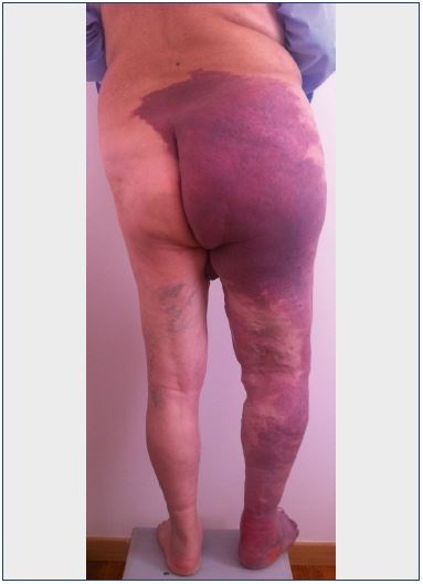 Figure 2. A case where the triad of signs for Klippel-Trenaunay syndrome is present–nevus, limb overgrowth, and dilated superficial veins.