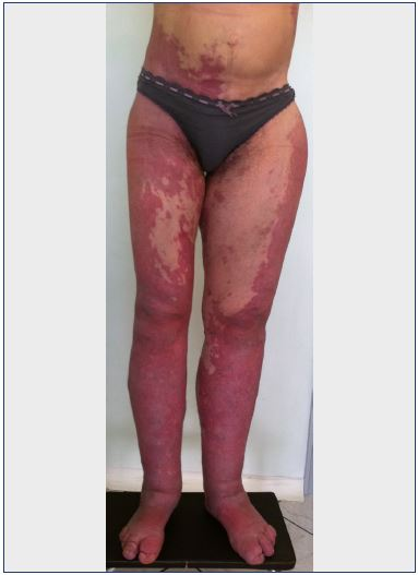 Figure 3. Bilateral Klippel-Trenaunay syndrome of the lower limbs.