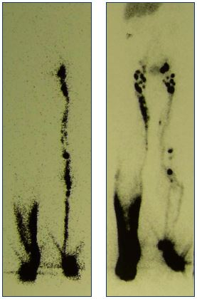 Figure 9. Lymphoscintigraphy of the deep and superficial lymphatic drainage system. Panel A shows an absence of draining lymphatic vessels (right) and dermal backflow in the deep system. Panel B shows a slow drainage in the superficial system (right).