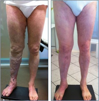 Figure 13. Results of surgical and alcohol treatment for Klippel- renaunay syndrome. Diagnosis demonstrates abnormal, diffuse, superficial veins; hypoplasia of the superficial femoral vein; and deep lymphatic dysplasia. Panel A. Before treatment. Panel B. After treatment.