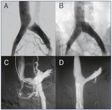 Figure 4. Treating compressive syndromes with stenting. Panel A. May-Thurner syndrome or compression of left iliac vein is shown in this pelvic phlebography. The presence of collateral pathways in the uterine and pelvic plexus is responsible for the PCS symptoms. Panel B. After placing a stent, normal blood flow is reestablished, avoiding pathologic collateral systems. Panel C. Nutcracker syndrome or left renal vein compression is shown in the pelvic phlebography. In this case, the pressure increase develops an insufficiency in the left gonadal vein, with the concurrence of an ascending paravertebral collateral system. Panel D. The left renal vein compression is corrected with a stent, which again reestablishes normal blood flow.