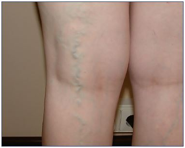 Figure 1. Varicose veins in a patient with pelvic congestion syndrome. The left leg is presenting more than the right.