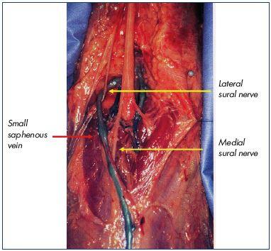 Small saphenous vein interventional treatment - Servier