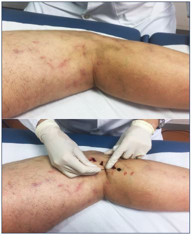 How to manage complications after sclerotherapy - Servier