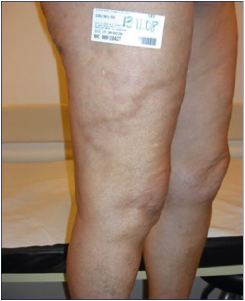 How To Prevent Complications And Side Effects From Sclerotherapy Of