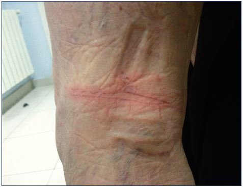 Skin irritation secondary to tape application behind the knees