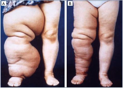 State Of Art In Lymphedema Management Part 1 Servier Phlebolymphologyservier Phlebolymphology