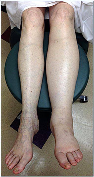 edema picior varicoase vene